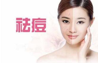 北京治疗痤疮哪家美容医院效果好 多少钱