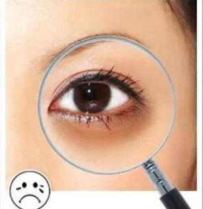 武警河南省总队医院激光整形科怎么快速去掉黑眼圈