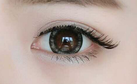 眼袋眼纹怎么去 衡阳曹家整形医院激光美容还你明媚双眸
