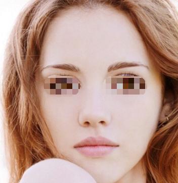 邯郸雅丽美容整形医院去除黑眼圈有什么方式呢 效果如何