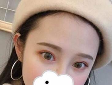 杭州双眼皮修复哪家好  双眼皮失败修复的价格贵不贵