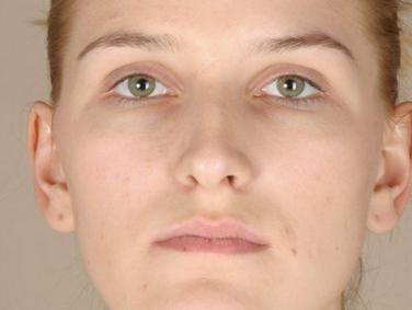 取出假体鼻子会松弛吗 南京美梯假体隆鼻技术怎么样