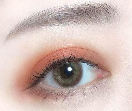 女生做双眼皮方法 珠海九龙国际整形医院手术多少钱