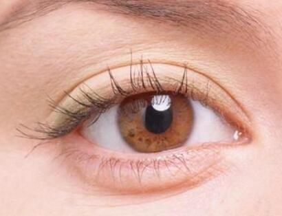成都韩美整形医院去除眼袋手术方法 打造青睐魅眼
