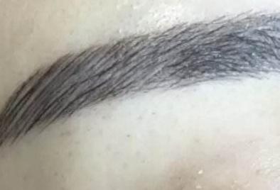 男士植眉多少钱 泰州华美整形医种植眉毛效果好不好