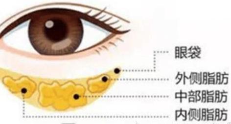 祛眼袋后眼睛凹陷怎么办?上海原辰怎样解决眼睛凹陷。