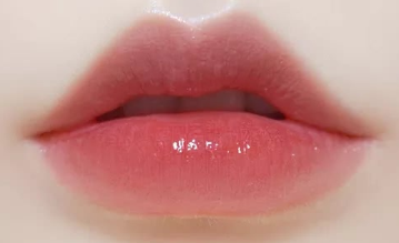 兔唇整形哪家医院好 台州天南整形医院可以修复唇裂吗