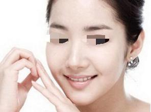 杭州瑞丽整形医院面部吸脂效果如何样 让脸部更加美丽