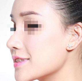 福州台江医院整形科处女膜修复怎么样 让你更加自信