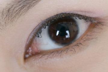 黑眼圈怎么祛除 无锡施尔美整形医院黑眼圈去除价格多少呢