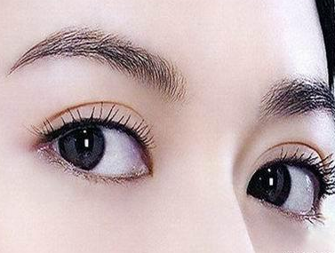 莆田雅美佳整形医院做双眼皮修复手术效果好吗