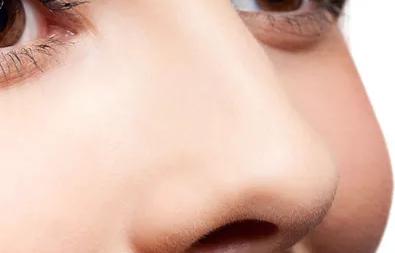 大鼻子怎么变小 九江汪海峰整形医院鼻翼缩小效果如何