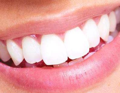 小孩长龅牙怎么办 临沂咖美整形医院做牙齿矫正效果如何