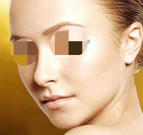 眼袋如何有效去除 德州圣韩美整形美容医院激光祛眼袋好吗