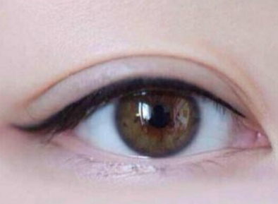 双眼皮修复哪里可以做 襄阳美嘉壹整形医院双眼皮修复效果