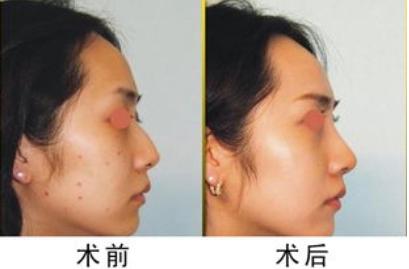 激光祛痣安全吗  上海第九人民医院整形外科激光祛痣怎么样