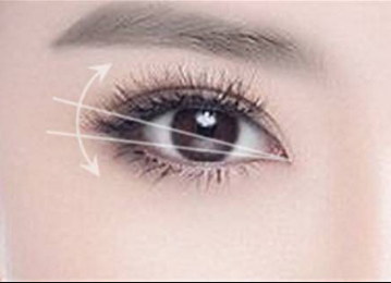 温州做双眼皮哪家好  温州瑞亚整形医院埋线双眼皮靠谱吗