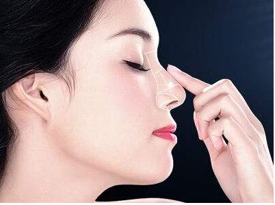 北京新星靓京广医疗整形医院解决了我塌鼻子的问题