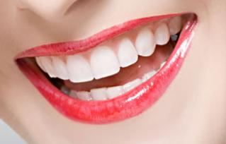 虎牙可以矫正牙齿吗 南宁贺永奎整形医院虎牙矫正的价格