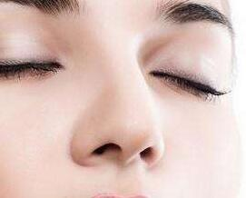 郑州艺龄整形医院隆鼻价格咨询 假体隆鼻费用高吗