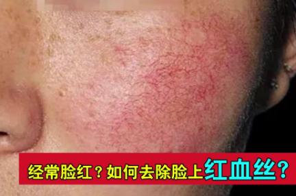 激光可以去面部红血丝吗 上海富华医疗美容整形医院怎么样