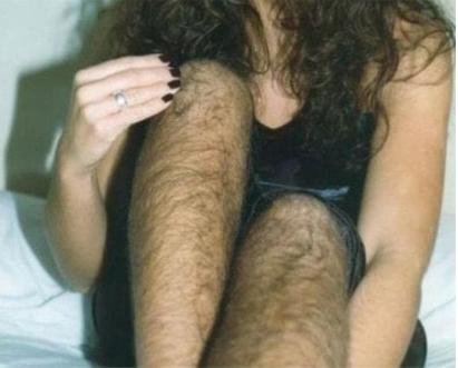 激光脱腿毛需要注意什么  西安未央施尔绮医疗整形医院贵吗