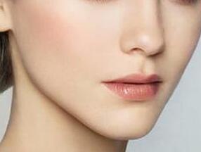 北京中山医院整形科最好的隆鼻医生 假体隆鼻效果