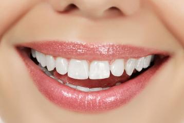 如何修补牙冠 自贡尚美整形医院修补牙冠技术好不好
