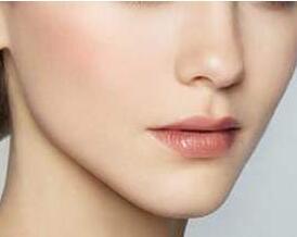 哈尔滨做自体隆鼻术多少钱 让鼻型更自然