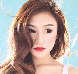 深圳艾妍整形美容医院下颌角磨骨多少钱 需要注意什么