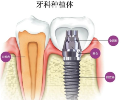 种植牙都用什么材料 厦门脸博士整形外科医院有什么优势