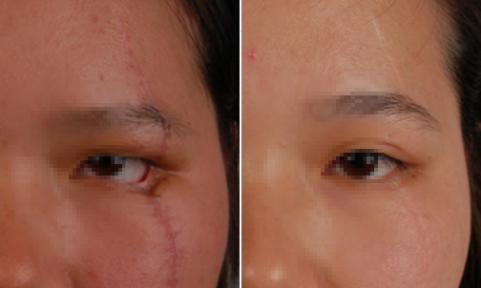 激光祛疤贵吗 上海百达丽医疗美容医院激光祛疤给我自信