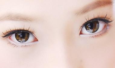 寶雞韓美整形醫院埋線雙眼皮十天可以恢復嗎