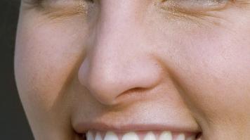 假体隆鼻好不好 兰州圣莫丽斯整形医院隆鼻技术如何
