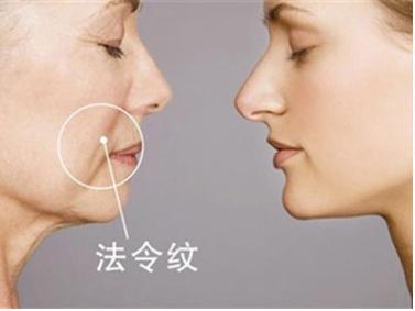 法令纹怎么去除 唐山青华皮肤医院整形科去法令纹效果好吗