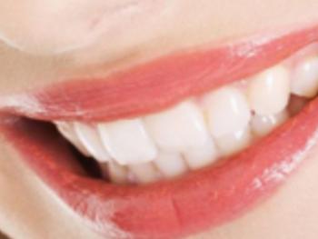 牙齿种植的注意事项 银川崔大夫整形医院牙齿种植好吗