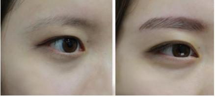 唐山艾美医疗美容整形医院眉毛种植 让你从此眉清目秀