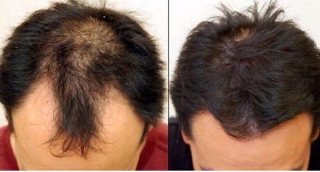 唐山美泉医疗整形美容医院头发种植  解决多年脱发问题