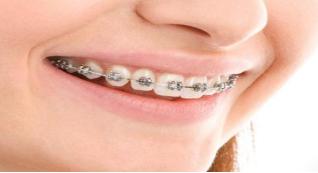 牙齿地包天怎么治疗 大庆人民医院美容科地包天矫正好吗