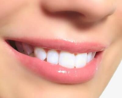 呼和浩特华医口腔医院牙齿美容矫正价格 让牙齿更美观