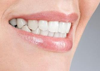 山东省立医院美容整形外科种植牙的效果好不好