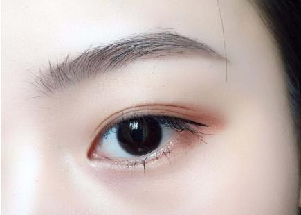 北京双眼皮整形医院排名 主要有哪些方式