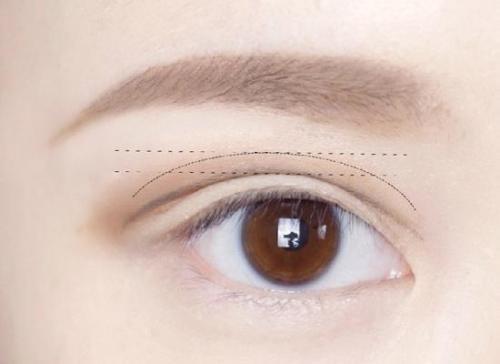 埋线双眼皮恢复时间是多久  唐山美仁整形效果如何