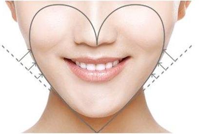 如何改善下颌角突出 不开刀从根上解决