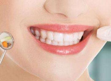 牙齿地包天的危害 合肥安妮整形医院地包天矫正怎么样