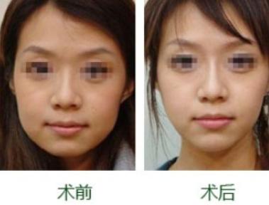 太原迎泽区舒曼医疗美容整形医院瘦脸整形 让小脸更迷人