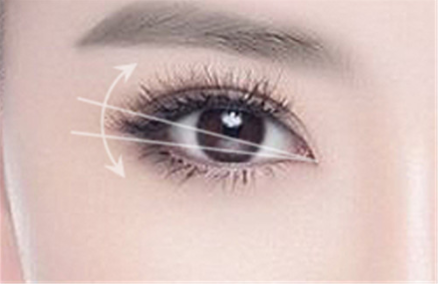 南京克拉美整形医院做韩式三点双眼皮过程怎样  价格多少