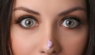 外切祛眼袋恢复期多久 赣南医学院第一附属医院去眼袋效果