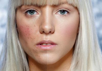 包头第八医院皮肤美容科怎么消除脸上的红血丝 能变漂亮吗