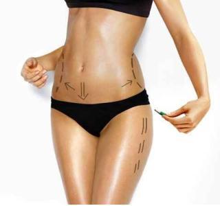 女人臀部太丰满怎么瘦 天津伊诗吸脂整形医院有副作用吗